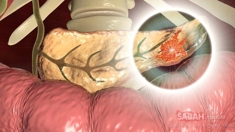 Bu belirtiye dikkat! Pankreas kanserini işaret ediyor