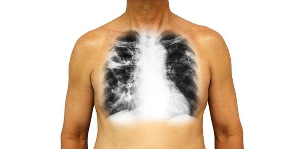 Dikkat! Bu durum akciğeri yok ediyor
