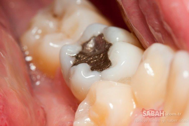 Bu besin diş çürüğüne engel oluyor! İşte diş çürüğüne engel olan besinler