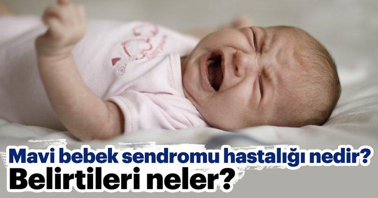 Mavi bebek sendromu hastalığı nedir? Belirtileri neler?