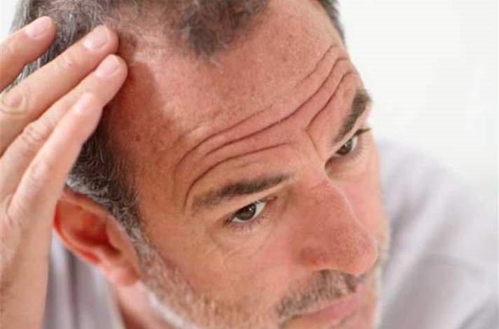 Saçları kazıtmak dökülmeyi önler mi?