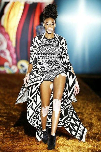 Cilt lekeleriyle ünlü olan model Winnie Harlow, Dubai'de!