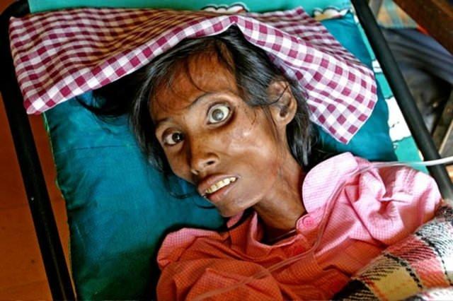 Dünyanın en ölümcül hastalıkları