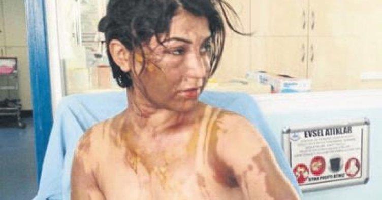Hala ve yeğeni uyurken asitli saldırıya uğradı