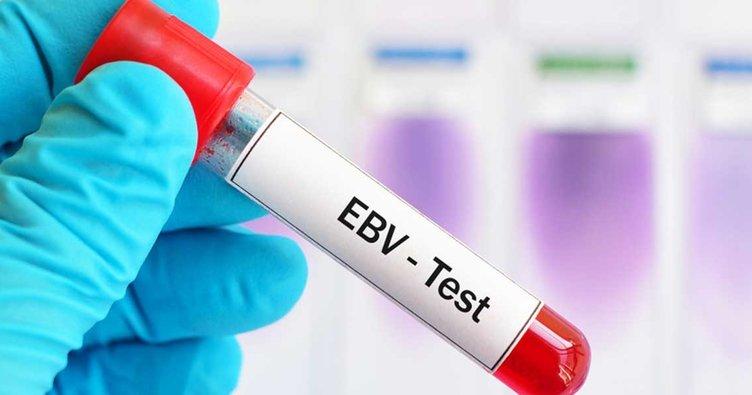 EBV virüsü nedir? EBV virüsü tekrarlar mı?