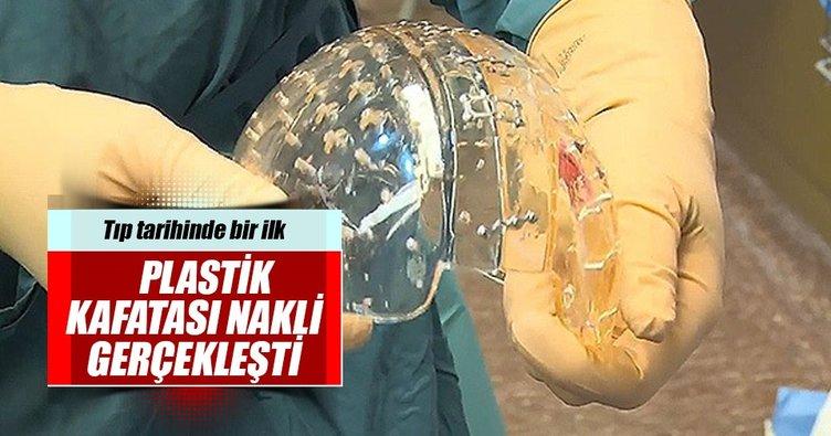 Tıp tarihinde bir ilk: Plastik kafatası nakli