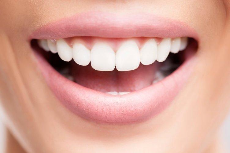 Diş eti büyümelerinde ilk adım ağız temizliği ve bakımı