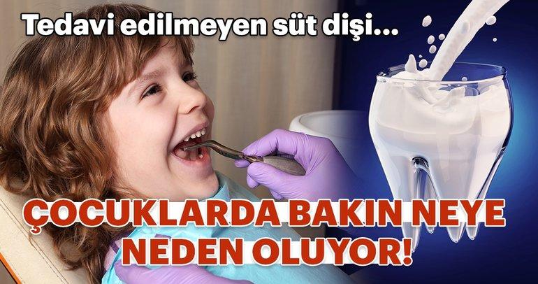 Tedavi edilmeyen süt dişi çocuklarda bakın neye neden oluyor!