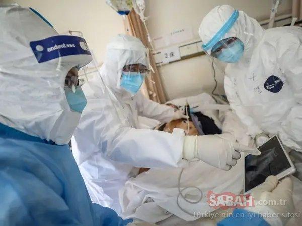 SON DAKİKA HABER: Corona virüsü hastalarının otopsisinde şok ayrıntı! Ölenlerde virüsün devamlılığı görüldü