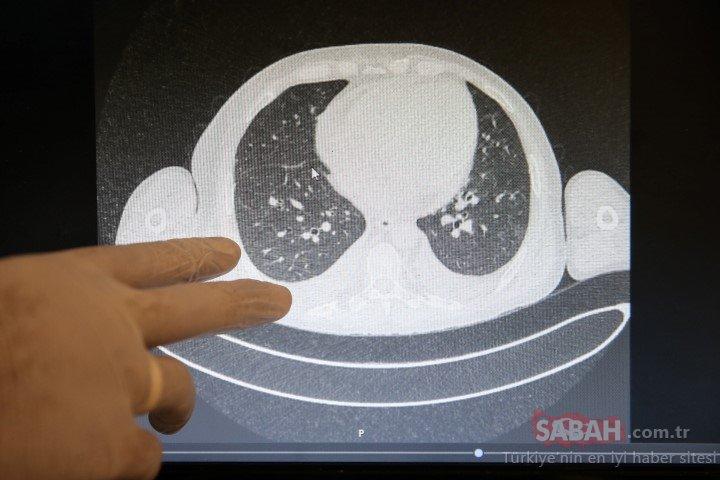 Kovid-19'un akciğerlere verdiği zarar tomografi görüntülerine yansıyor
