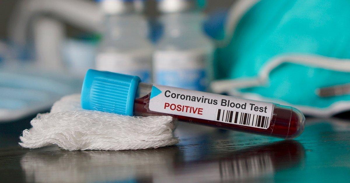 Anatolia Genetik coronavirus test kiti ile ilgili görsel sonucu