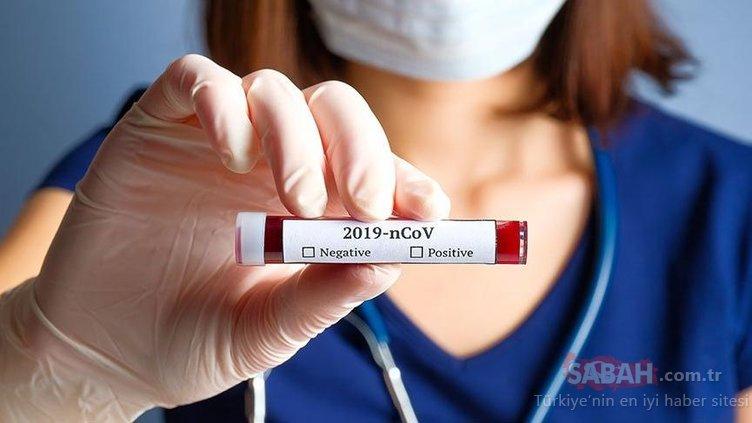 Sağlık Bakanlığı Corona virüs tablosu: Türkiye'de koronavirüs vaka ve ölü sayısı kaç? Bakanlık günlük corona tablosunu açıkladı