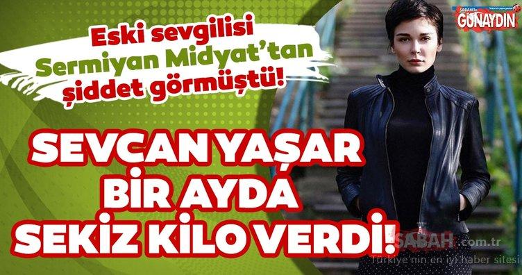 Eski sevgilisi Sermiyan Midyat'tan şiddet görmüştü! Sevcan Yaşar bir ayda sekiz kilo verdi!