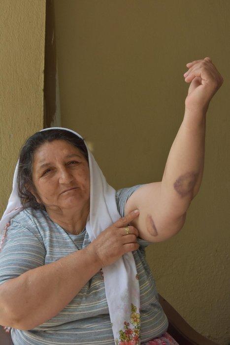 Anne ve zihinsel engelli oğlu, komşuları tarafından darp edildi