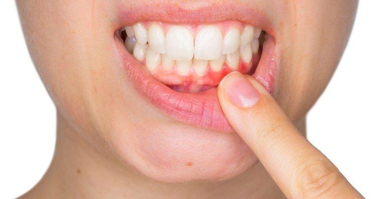 İltihaplı diş eti ağrısına ne iyi gelir? Diş eti şişmesi ve ağrısı nasıl geçer? İşte doğal ve bitkisel tedavi önerileri!