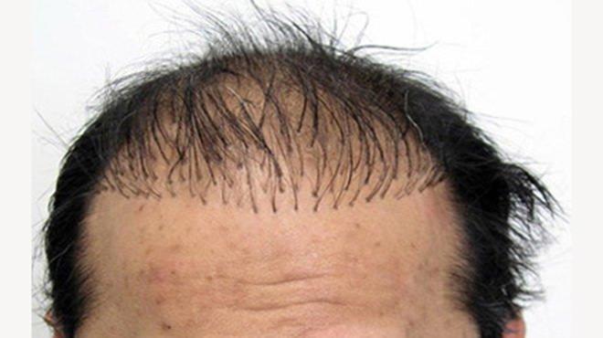 Saç ekimi öncesi bunları sakın tüketmeyin