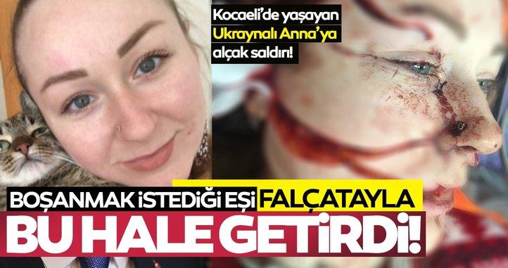 SON DAKİKA | Boşanmak isteyen Ukraynalı eşi Anna Butim'in yüzünü falçatayla parçaladı!