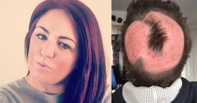 Kirsty Weston saçlarını boyamak için aldığı açıcı yüzünden kel kaldı!