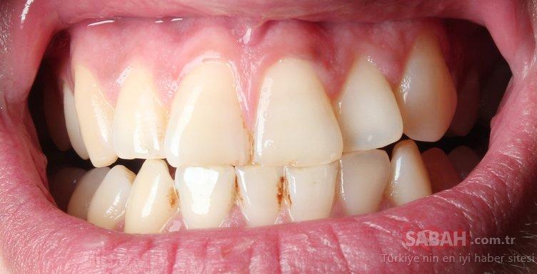 Bu besin diş taşlarından anında kurtulmanızı sağlıyor!