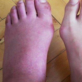 Ayak şişmesinin nedenleri nelerdir? Ayak şişmesi nasıl geçer?