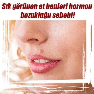 Sık görünen et benleri hormon bozukluğu sebebi