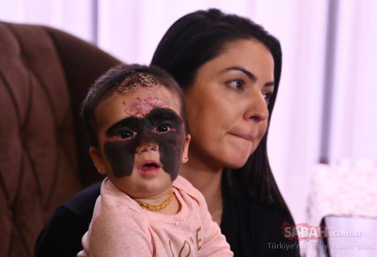 Şoke eden olay! Yüzündeki siyah izle dünyaya gelen kız...