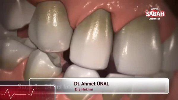 Diş taşı nasıl temizlenir? Diş taşı temizliği yöntemleri | Video