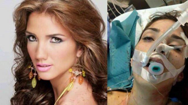 Venezuela güzeli eylemde öldü