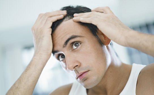 Saç dökülmesi başlıca nedenleri nelerdir?