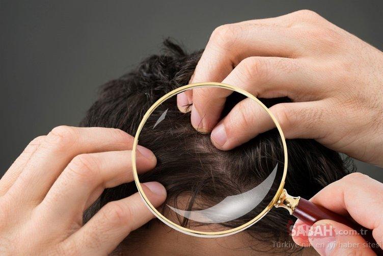 Saç dökülmesini bitiren en etkili besin...