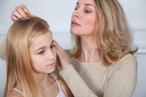 Çocuğunuzun saçında kepek varsa...