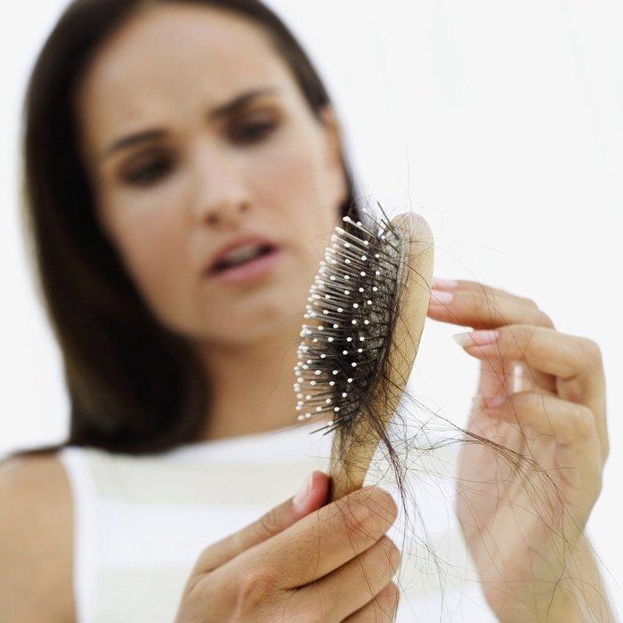 Saç dökülmesi neden olur, tedavisi nelerdir?