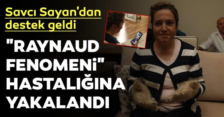 Raynaud fenomeni hastası tiftik eldivenlerine kavuştu