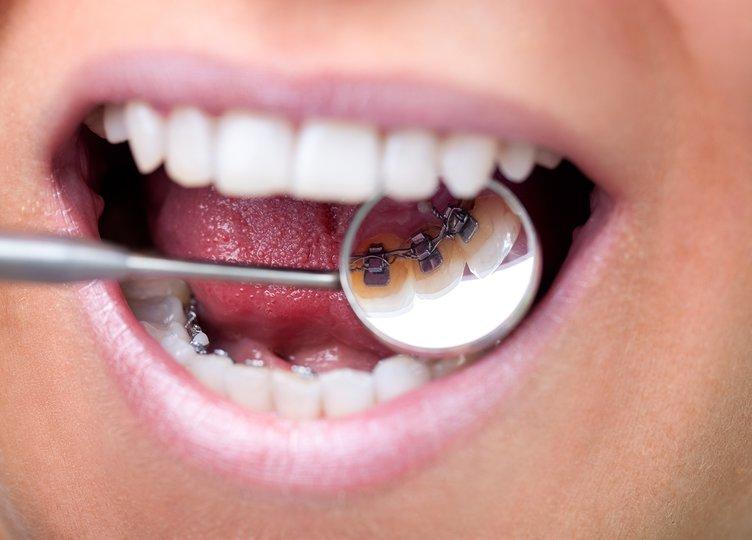 Görünmez diş telleri mutluluk veriyor