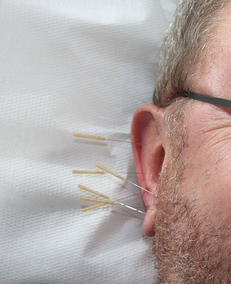 Akupunkturda yeni trend!