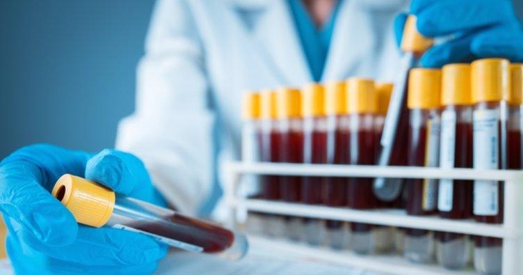 RDW nedir? Kan tahlilinde RDW düşüklüğü ve yüksekliği ne anlama gelir? Normal RDW değerleri