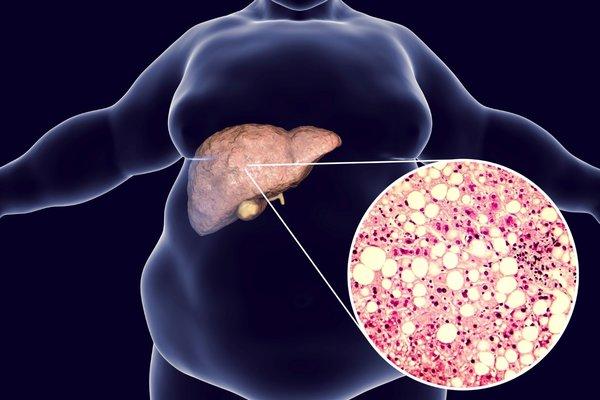 Karaciğer hastalığı belirtileri