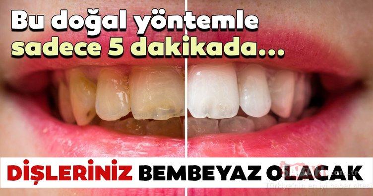 Bu yöntem sayesinde dişleriniz bembeyaz olacak! İşte dişleri beyazlatmanın doğal yolları