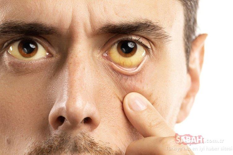 Bu belirtiler karaciğerinizin toksinlerle dolu olduğunu gösteriyor!