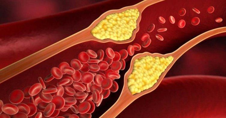 [Resim: kolesterol-belirtileri-nelerdir-kolester...838605.jpg]