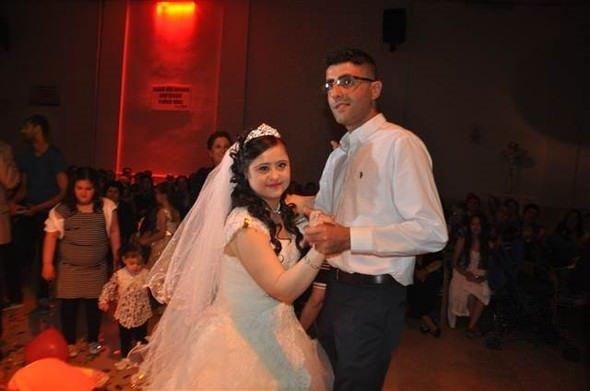 Down sendromlu kızı için damatsız düğün yaptı!