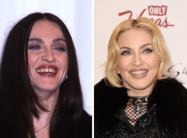 Dişleriyle birlikte kendi de değişmiş 25 ünlü