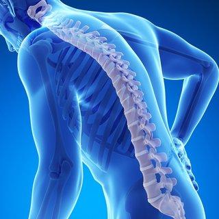 Kemik erimesi nasıl anlaşılır, belirtileri nelerdir? Kemik erimesi (osteoporoz) ağrı yapar mı?