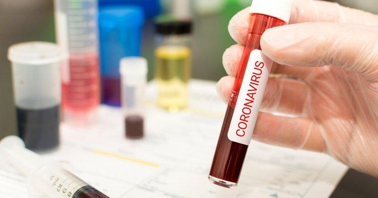 Konya Gıda ve Tarım Üniversitesi corona virüs için çalışma başlattı