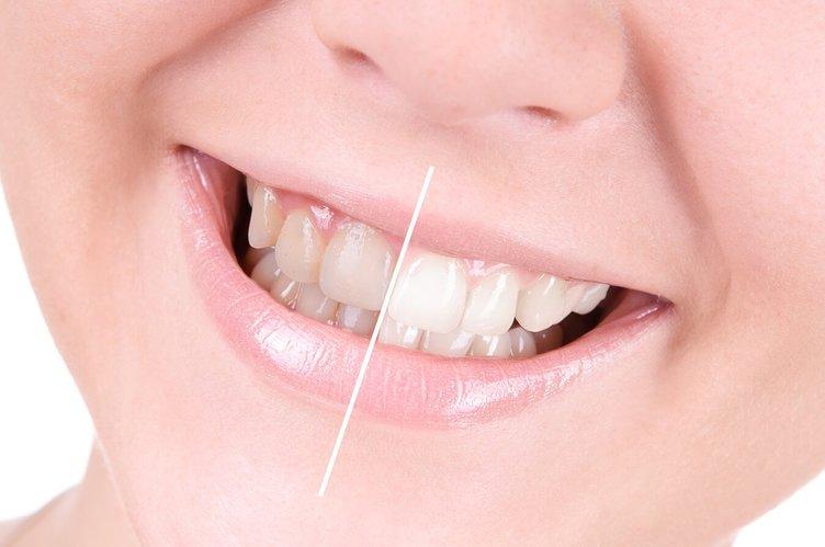 Diş rengi değişikliğine dikkat