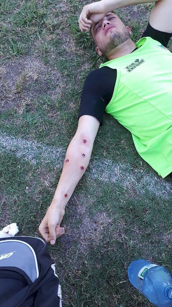 Futbolculara plastik mermi sıktılar!