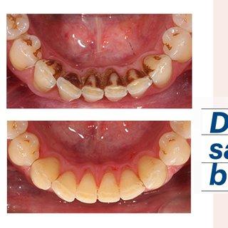 Dişlerinizi saniyeler içinde beyazlatacak!