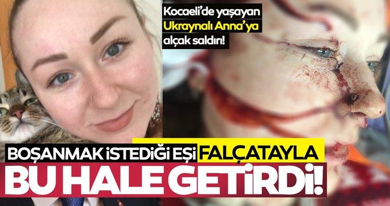 SON DAKİKA: Boşanmak isteyen Ukraynalı Anna Butim'in yüzünü falçatayla parçaladı! Mesut Öztürkmen tutuklandı