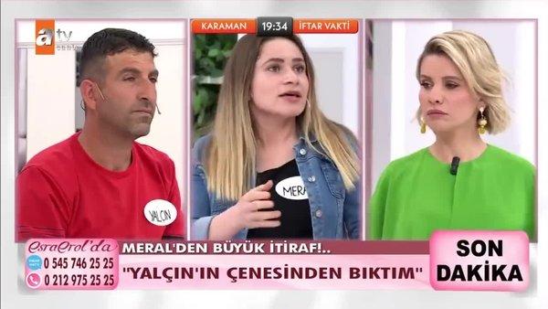 Esra Erol'da estetik ameliyat olup evden kaçan kadından kocasına canlı yayında şok sözler