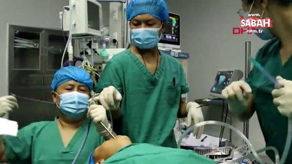 Çin'de 5 yaşındaki çocuğun boğazından canlı solucan çıkarıldı | Video